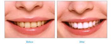 市販 歯 歯磨き粉 白く が なる